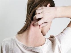 Descamação na pele