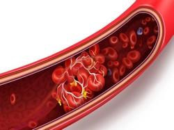 Complicações da trombose