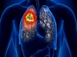 Tumor pulmão